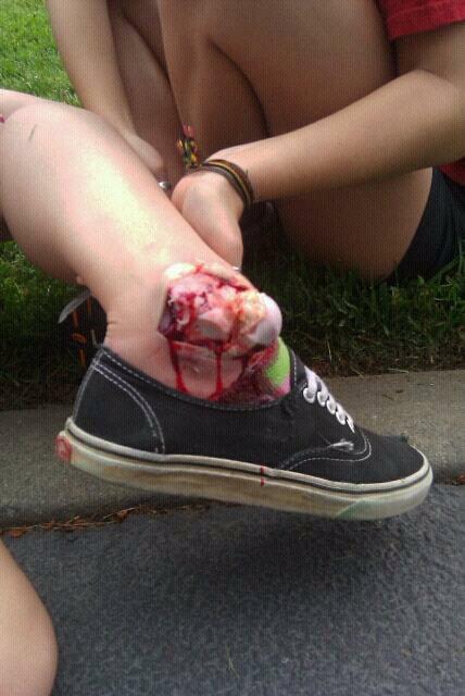 Badly Broken Ankle Skatebaording